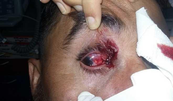 Santa Fé: brutal represión policial a futbolistas e hinchas